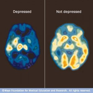 Scan of the brain on depressed vs not depressed